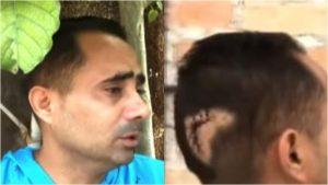 Periodista independiente en Cuba recibe brutal agresión por parte de protegido de la Seguridad del Estado