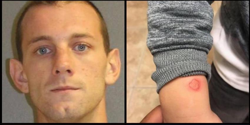 Hombre de Florida quema a su hijo de 4 años con un encendedor