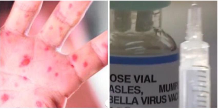 Mientras crece la amenaza del sarampión, muchos niños en Florida no están vacunados