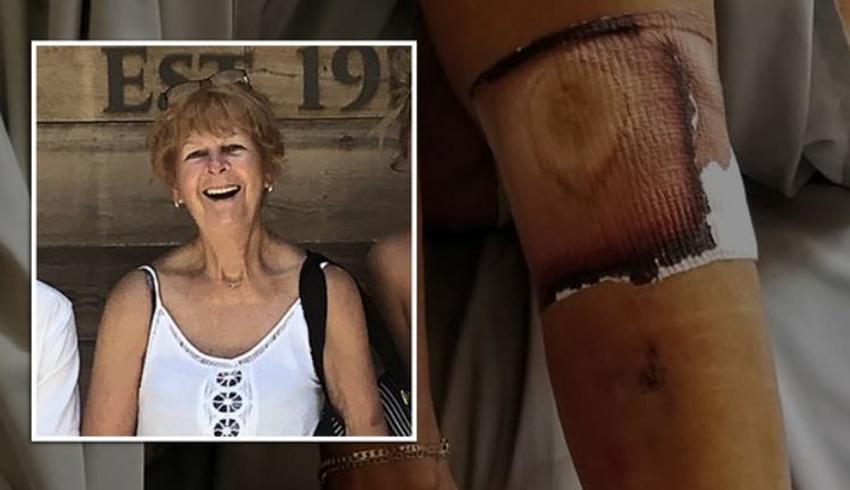"""Una mujer muere de complicaciones tras contraer la bacteria """"come carne"""" en una playa de Florida"""