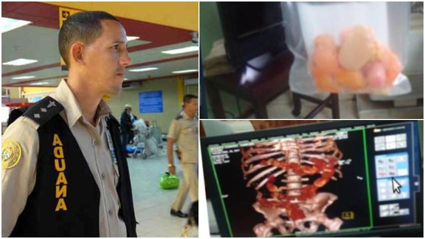 Aduana de Cuba detiene a un viajero con 36 cápsulas de cocaína que había ingerido
