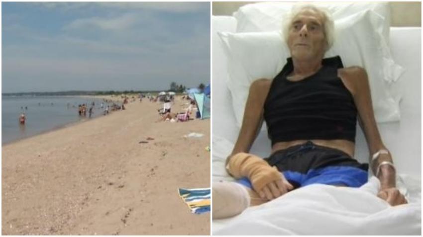 """Un hombre pierde una pierna tras contraer la bacteria """"come carne"""" en una playa de Estados Unidos"""