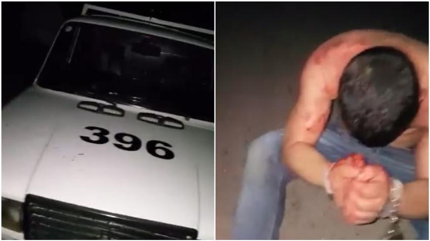 """Hombre denuncia en Cuba que la policía lo golpeó salvajemente: """"Me dieron por gusto"""""""