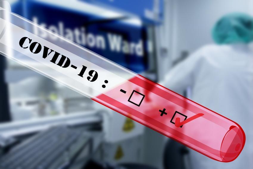 Casos de coronavirus en Florida superan los 760; y Miami-Dade supera a Broward