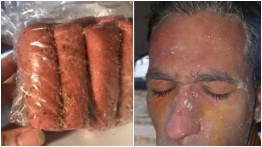 Cubano en Cuba denuncia que las croquetas que le vendieron en la isla le explotaron en la cara