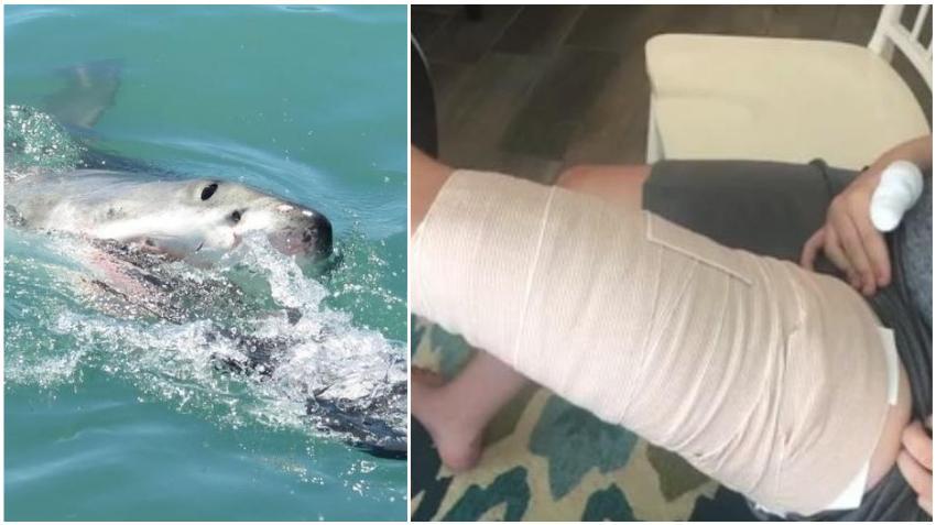 Tiburón ataca a un adolescente de 16 años en Carolina del Norte