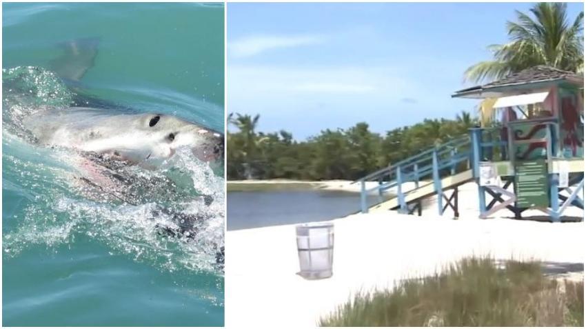 Niño de 7 años es atacado por un tiburón en una playa de Miami