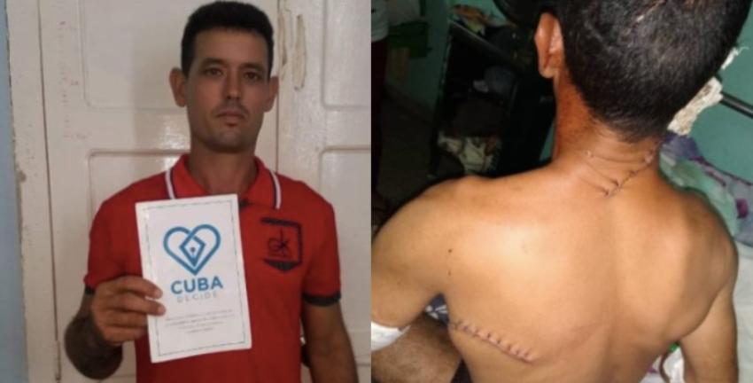 Intentan asesinar a un miembro de UNPACU, el opositor sobrevivió después de recibir seis machetazos