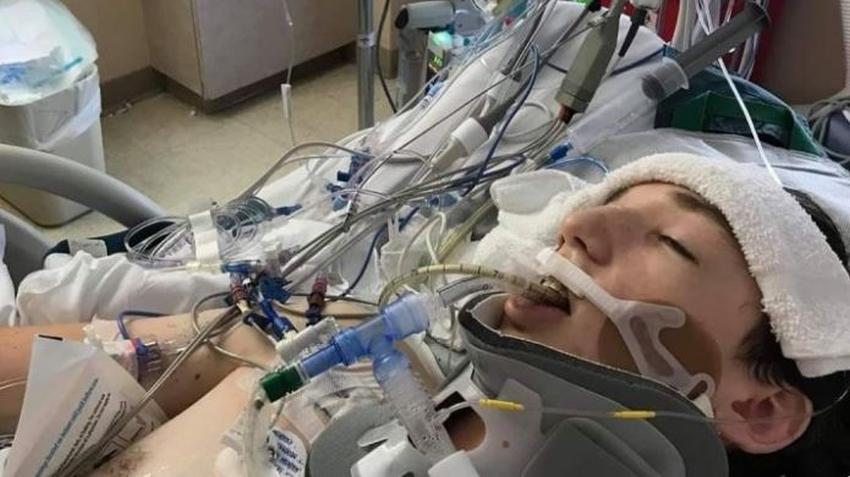 Adolescente que visitaba Florida con su familia es impactado por un rayo en el pecho