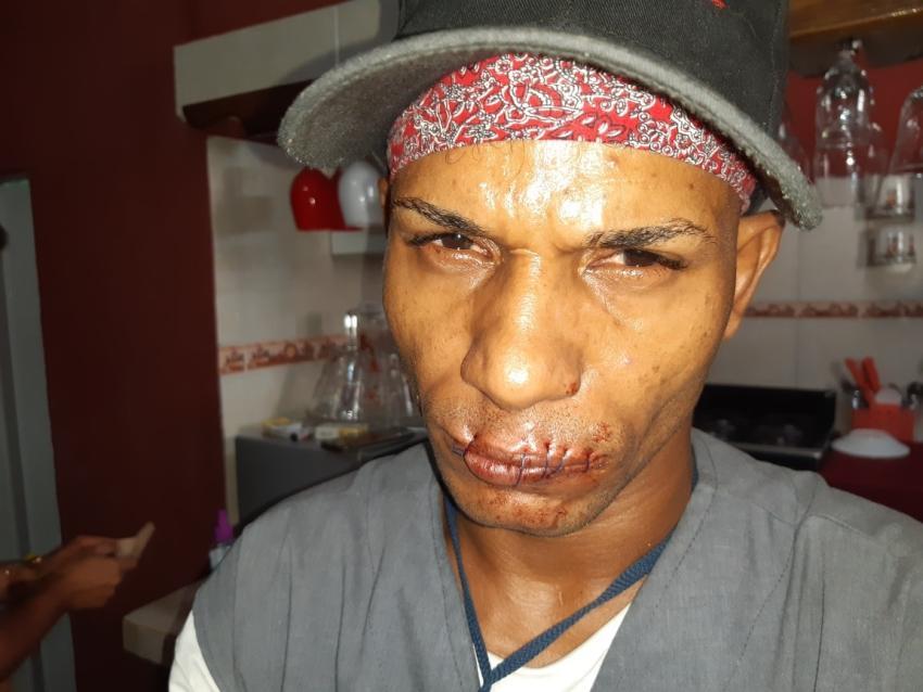 Opositor cubano Maykel Osorbo se cose la boca para protestar por la represión en Cuba