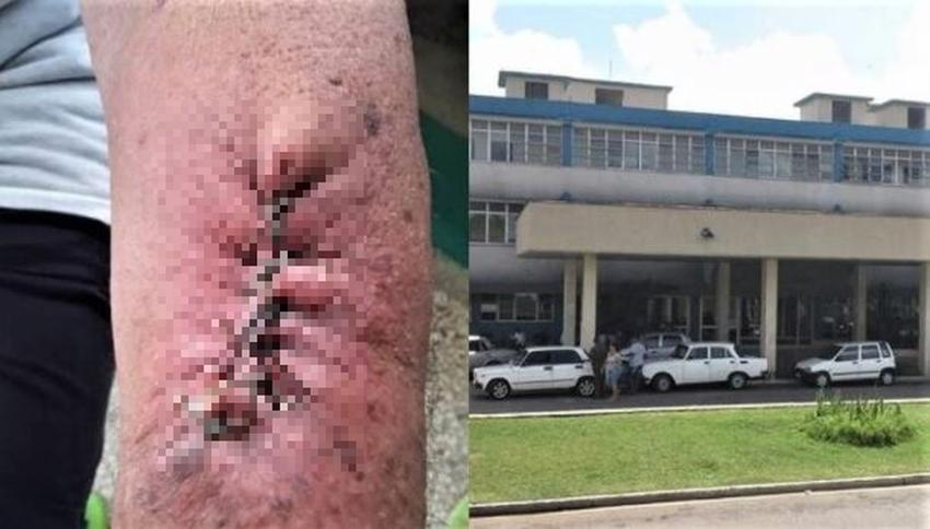 """""""Son mata vacas y curanderos"""", denuncia cubana al personal médico que atendió a su padre en un hospital de Matanzas"""
