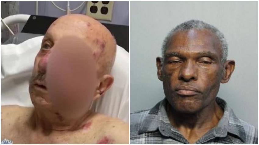 Identifican a hombre que atacó a anciano de 74 años en el metromover de Miami