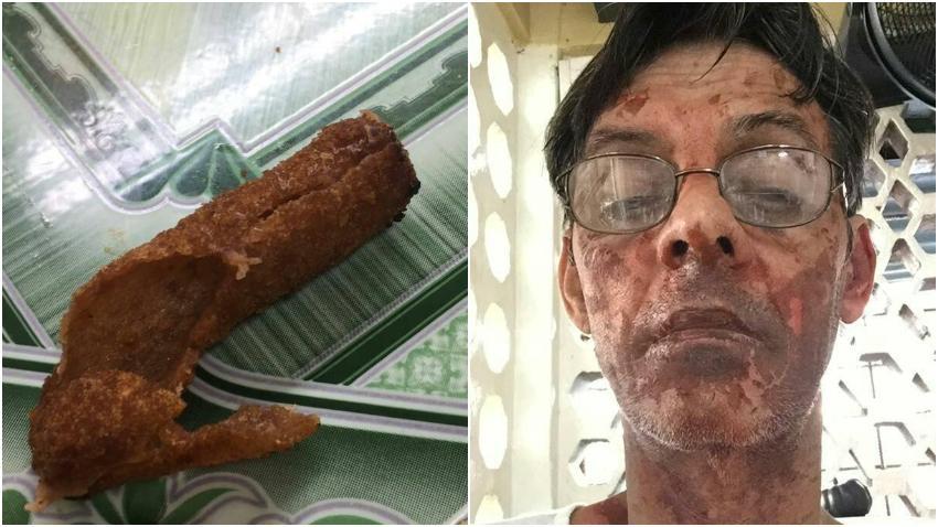 """Cubano víctima de """"croquetas explosivas"""" en Cuba termina con la cara quemada"""