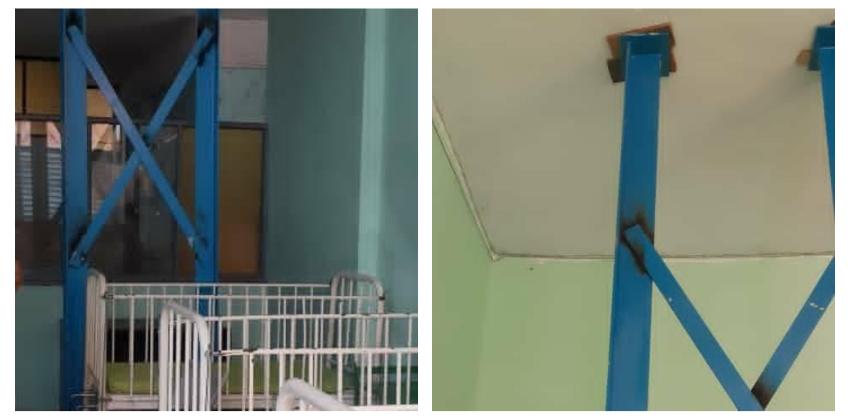 """Apuntalado con vigas parte del techo del hospital pediátrico """"Mártires de Las Tunas"""", denuncia médico cubano"""