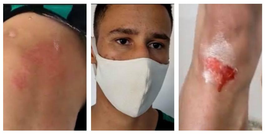 Policía castrista agrede al hijo de José Daniel Ferrer y a otro joven de la UNPACU