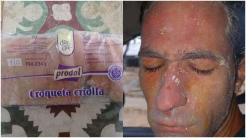 Empresa cubana Prodal culpa a los cubanos de que las croquetas exploten