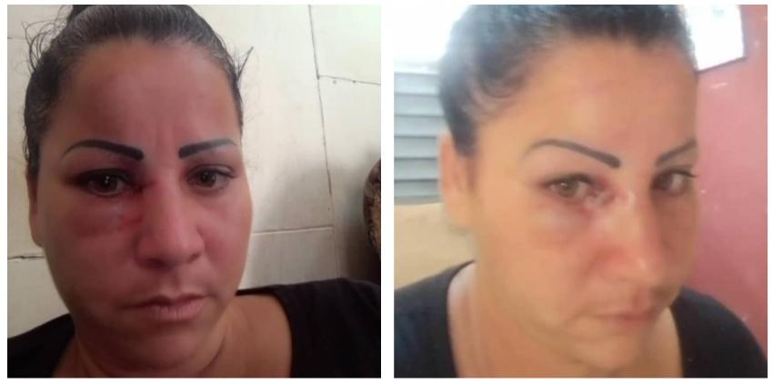Mandan a golpear a la activista Dairis González en Morón, Ciego de Ávila